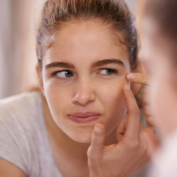 How to Get Rid of Pimples Fast: Everything You Need to Know